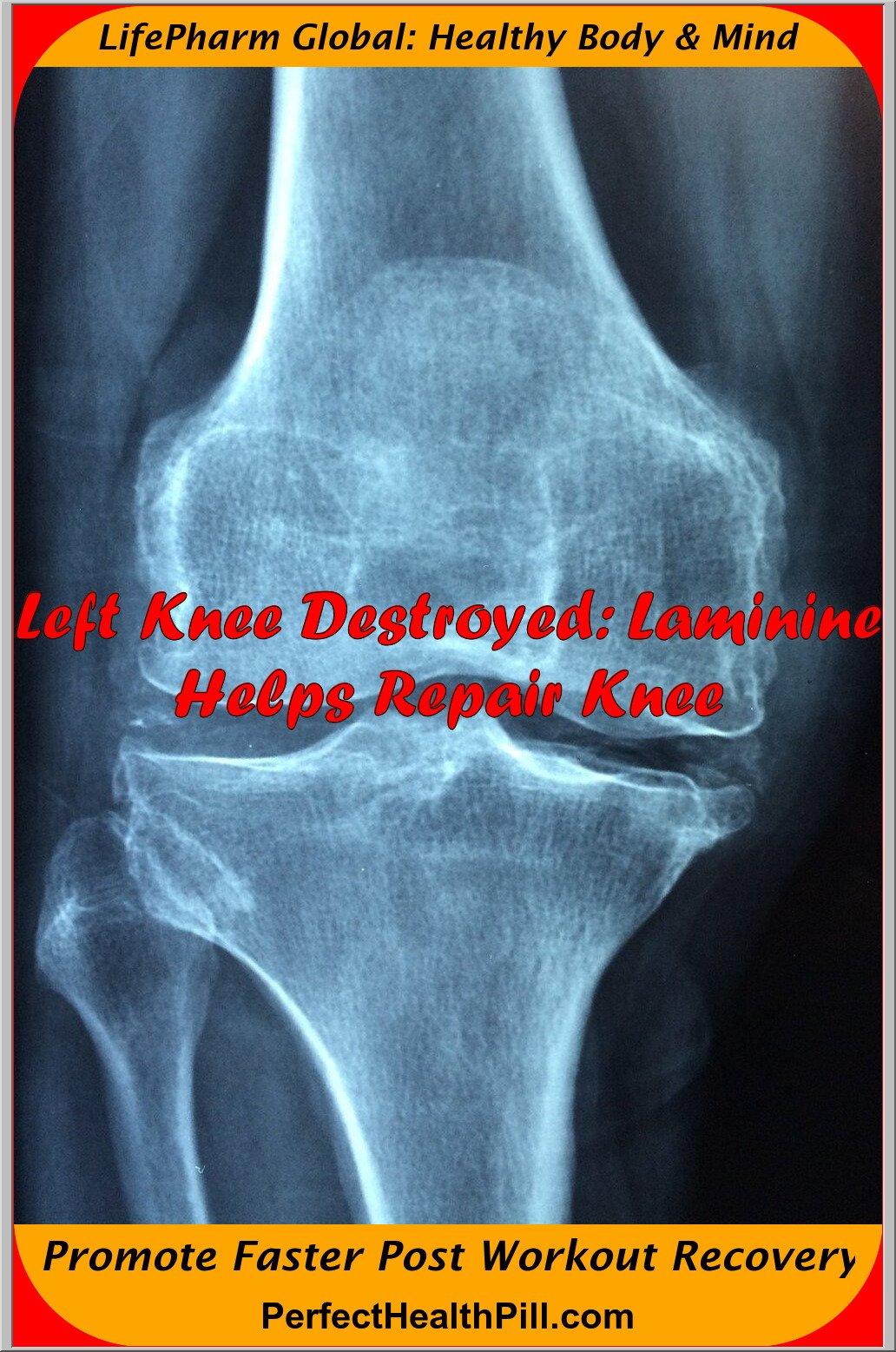 Laminine and knee surgery